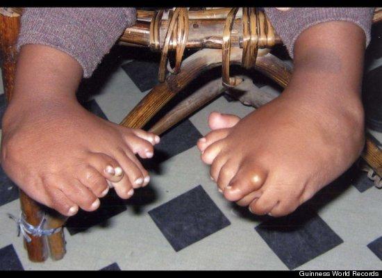 Niño con 32 dedos